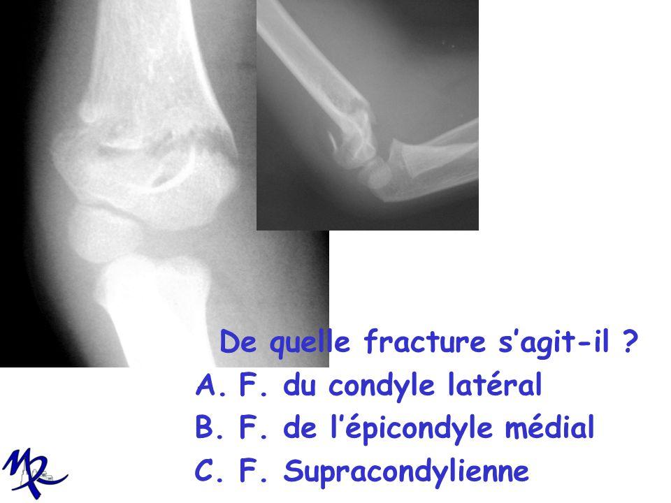 De quelle fracture s'agit-il
