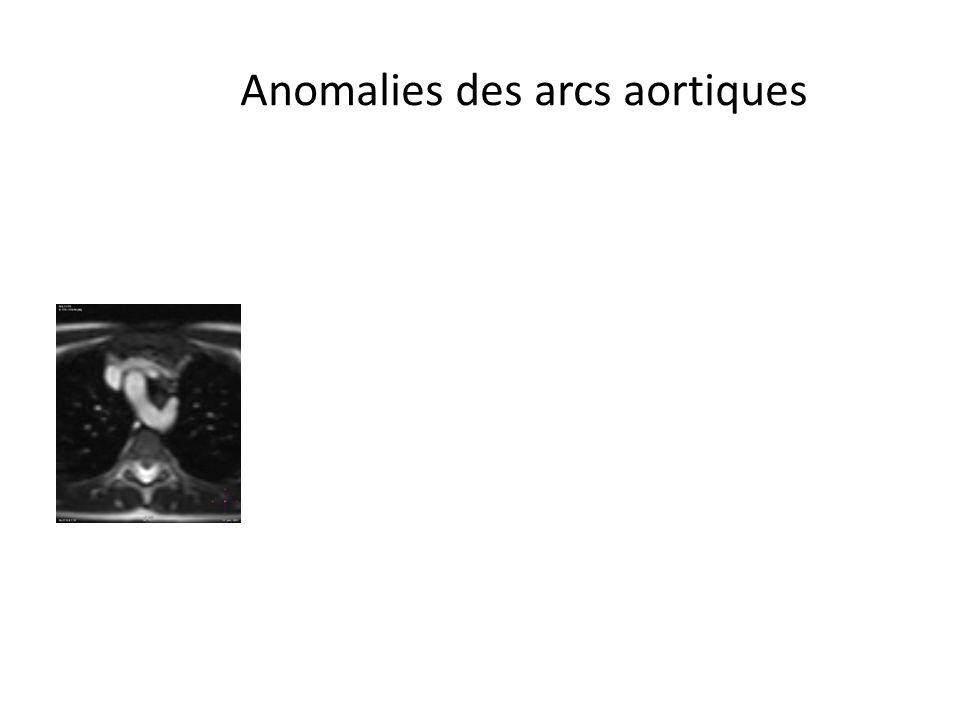 Anomalies des arcs aortiques