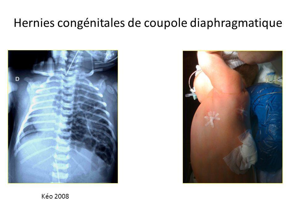 Hernies congénitales de coupole diaphragmatique