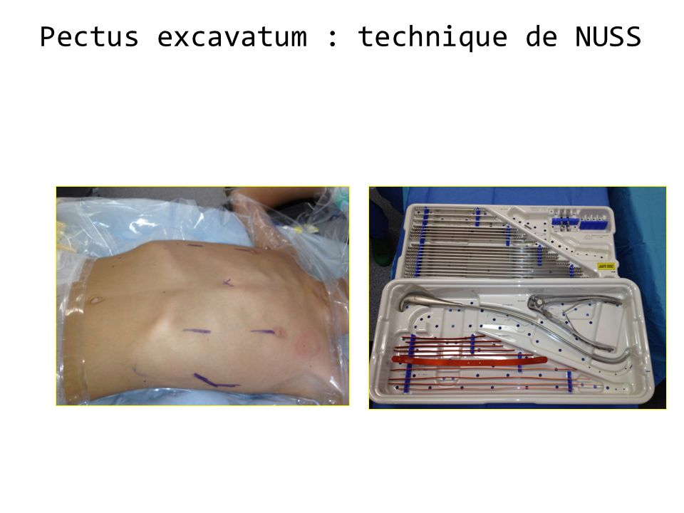Pectus excavatum : technique de NUSS