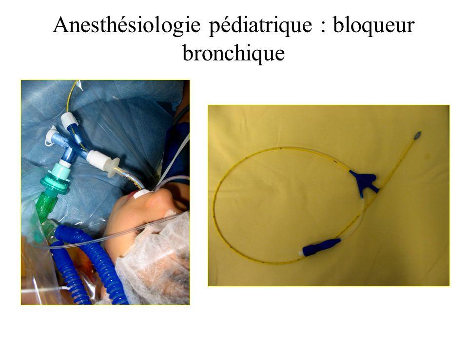 Anesthésiologie pédiatrique : bloqueur bronchique