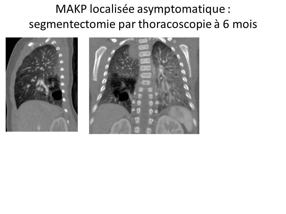 MAKP localisée asymptomatique : segmentectomie par thoracoscopie à 6 mois