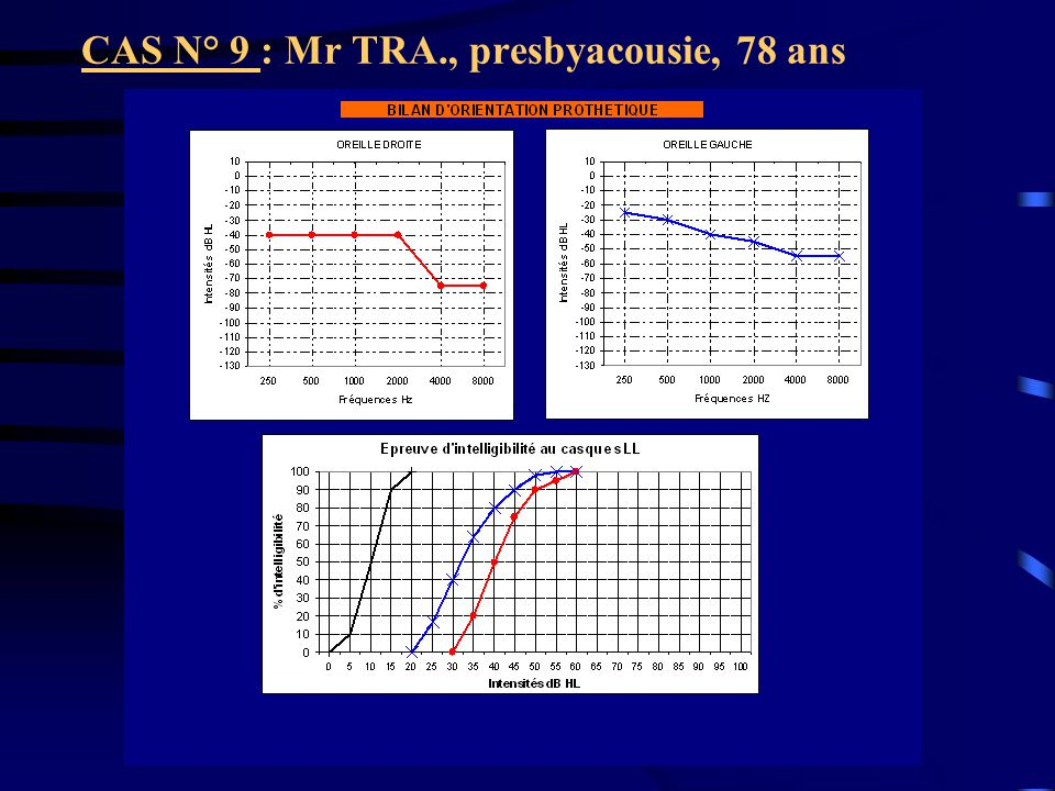 CAS N° 9 : Mr TRA., presbyacousie, 78 ans