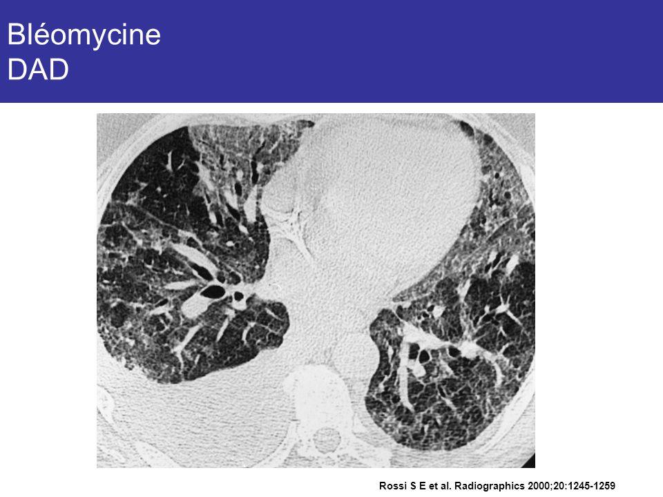 Bléomycine DAD Homme de 39 ans, tumeur germinale, chimio comportant de la bléomycine. Toux productive et dyspnée.