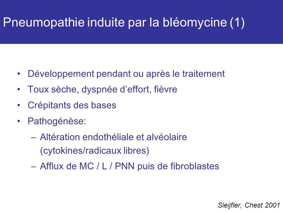 Pneumopathie induite par la bléomycine (1)