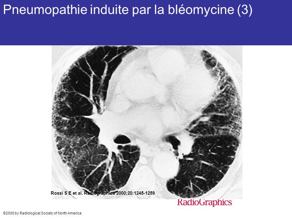Pneumopathie induite par la bléomycine (3)