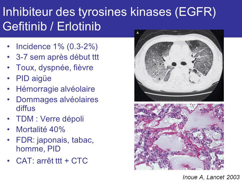 Inhibiteur des tyrosines kinases (EGFR) Gefitinib / Erlotinib