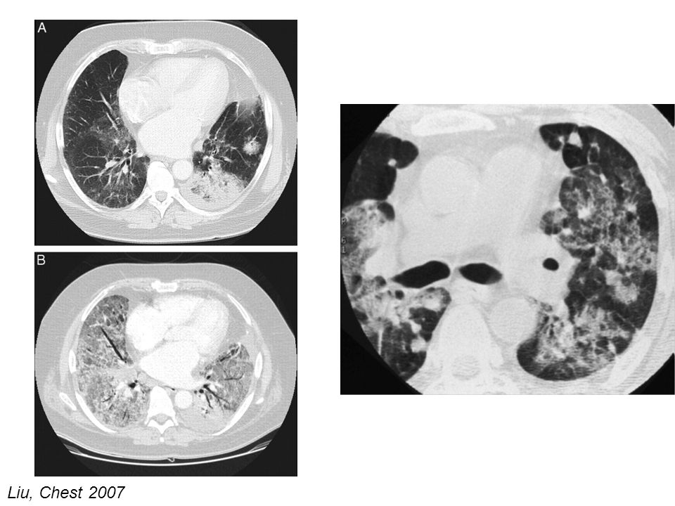 A CT scan through the lung bases demonstrates consolidation with air bronchograms in the left lower lobe, an adjacent 2.4-cm nodule, and smaller nodules as well as ground-glass densities in the right lower lobe (top, A). A CT scan through a similar section of the lung 1 month later demonstrates extensive ground-glass and airspace densities throughout most of the lungs (bottom, B). Previous consolidation at the left base is still present.