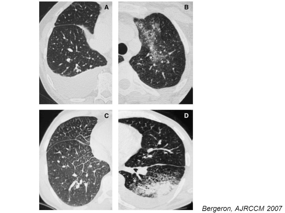Different lung high-resolution computed tomography patterns