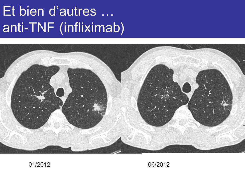 Et bien d'autres … anti-TNF (infliximab)