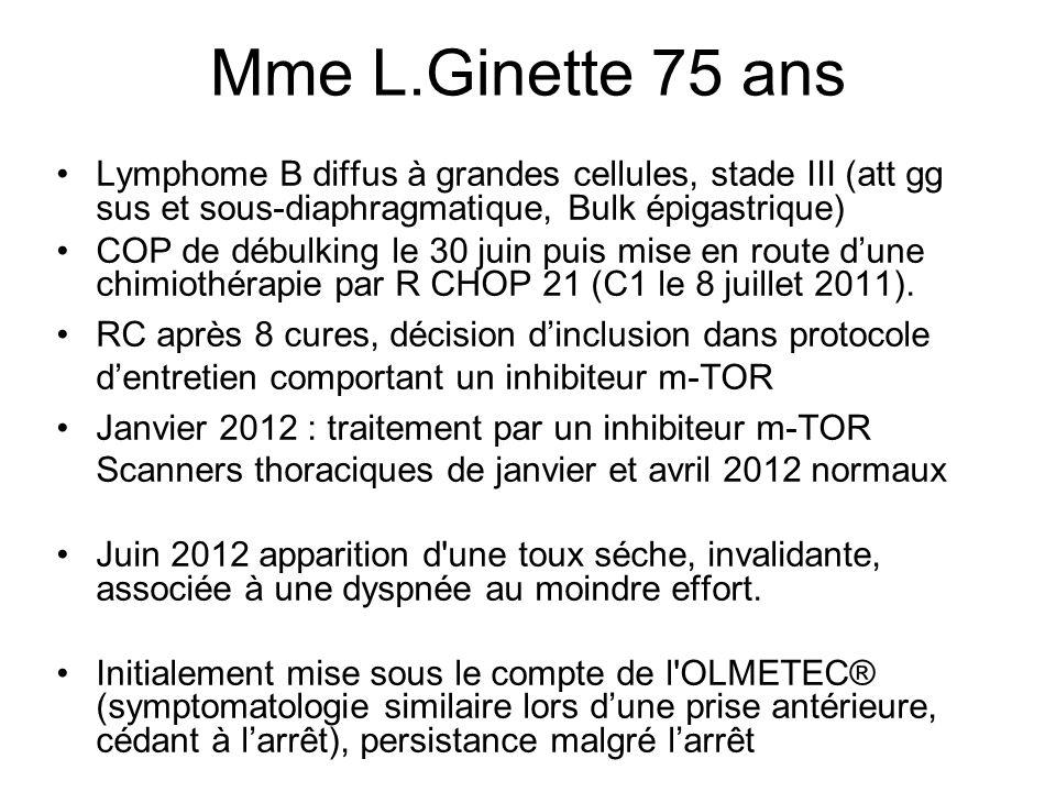 Mme L.Ginette 75 ans Lymphome B diffus à grandes cellules, stade III (att gg sus et sous-diaphragmatique, Bulk épigastrique)