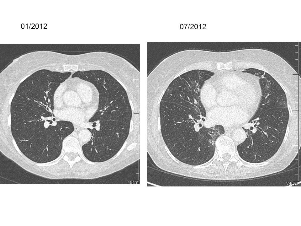 pneumopathie m u00e9dicamenteuse