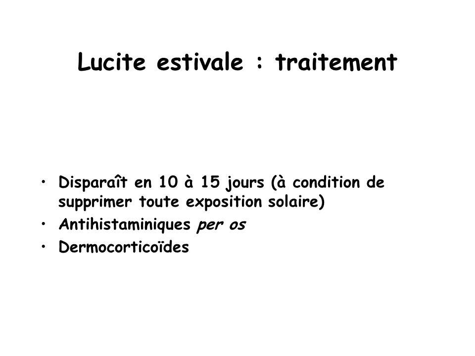 Lucite estivale : traitement