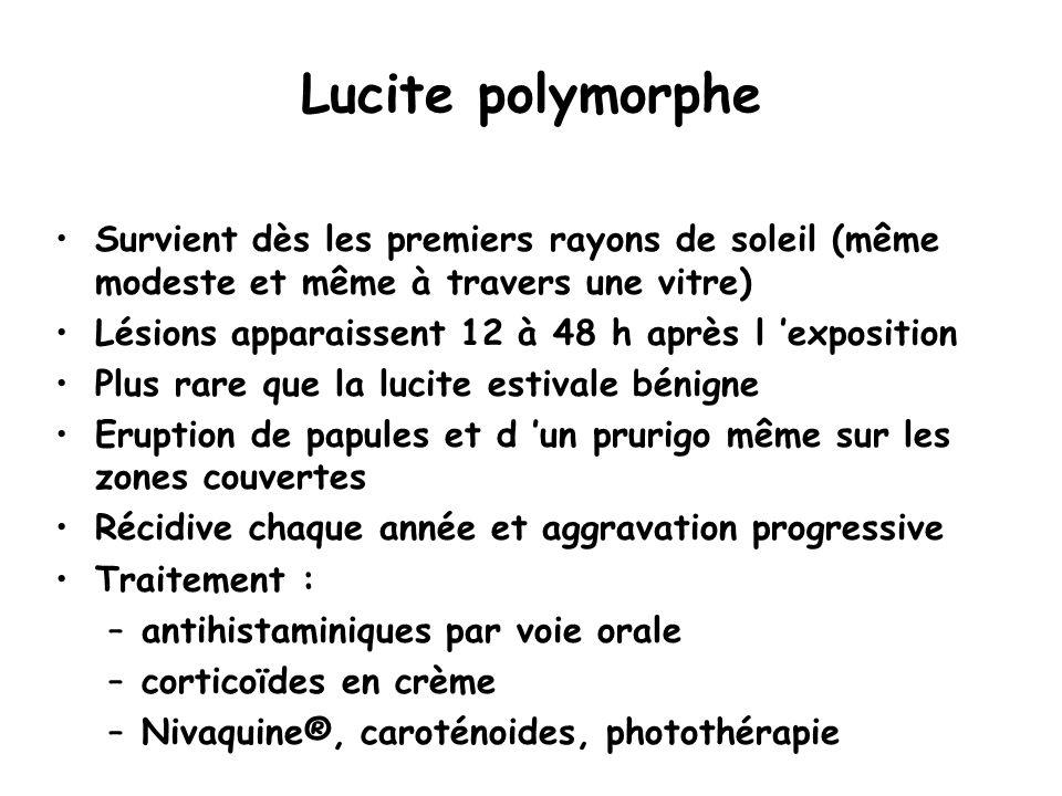 Lucite polymorphe Survient dès les premiers rayons de soleil (même modeste et même à travers une vitre)