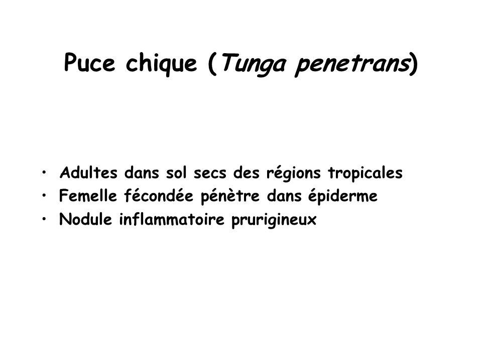 Puce chique (Tunga penetrans)