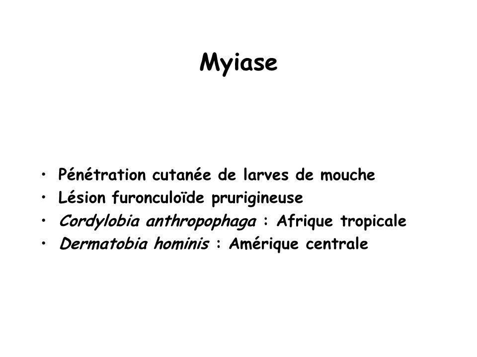 Myiase Pénétration cutanée de larves de mouche
