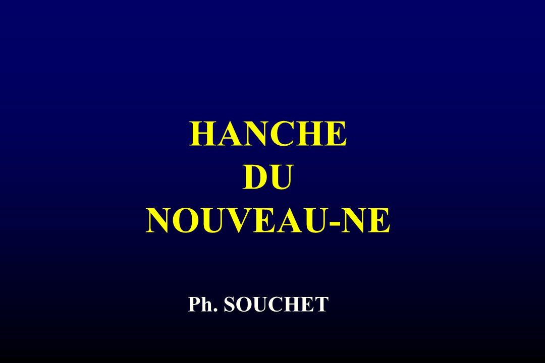 HANCHE DU NOUVEAU-NE Ph. SOUCHET