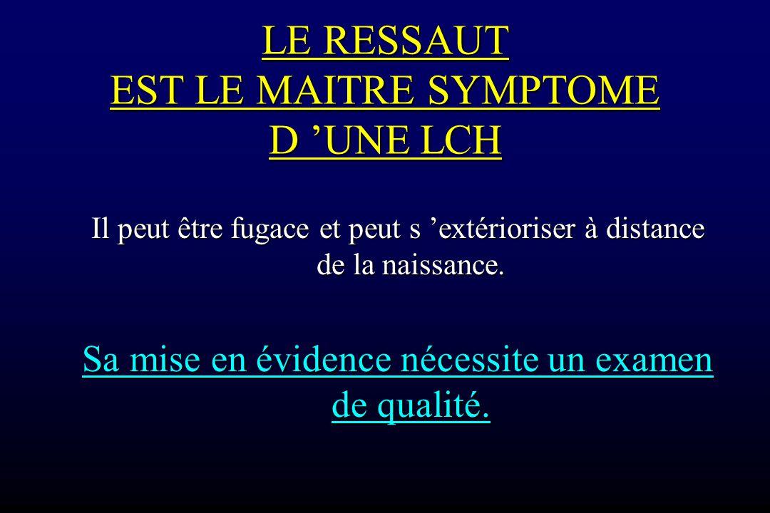 LE RESSAUT EST LE MAITRE SYMPTOME D 'UNE LCH