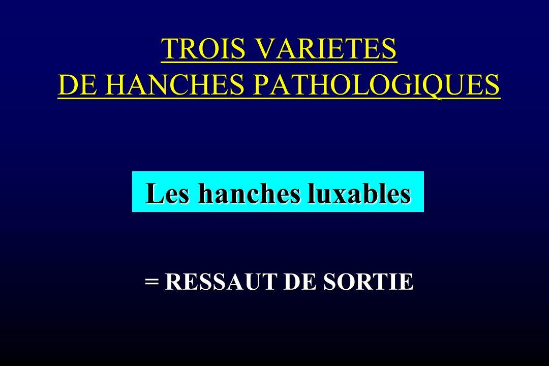 TROIS VARIETES DE HANCHES PATHOLOGIQUES