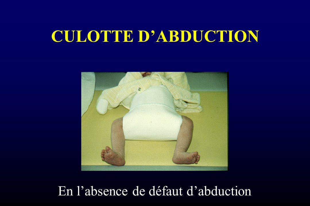 CULOTTE D'ABDUCTION En l'absence de défaut d'abduction
