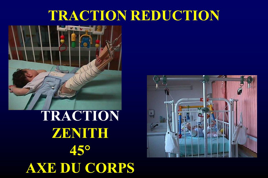 TRACTION ZENITH 45° AXE DU CORPS