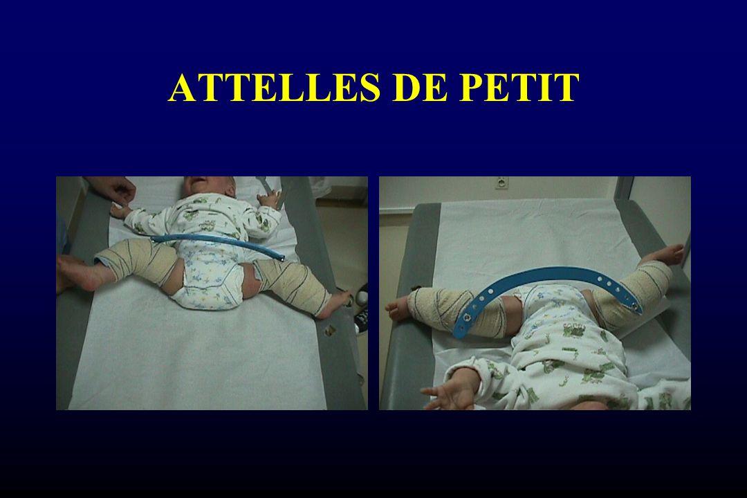 ATTELLES DE PETIT