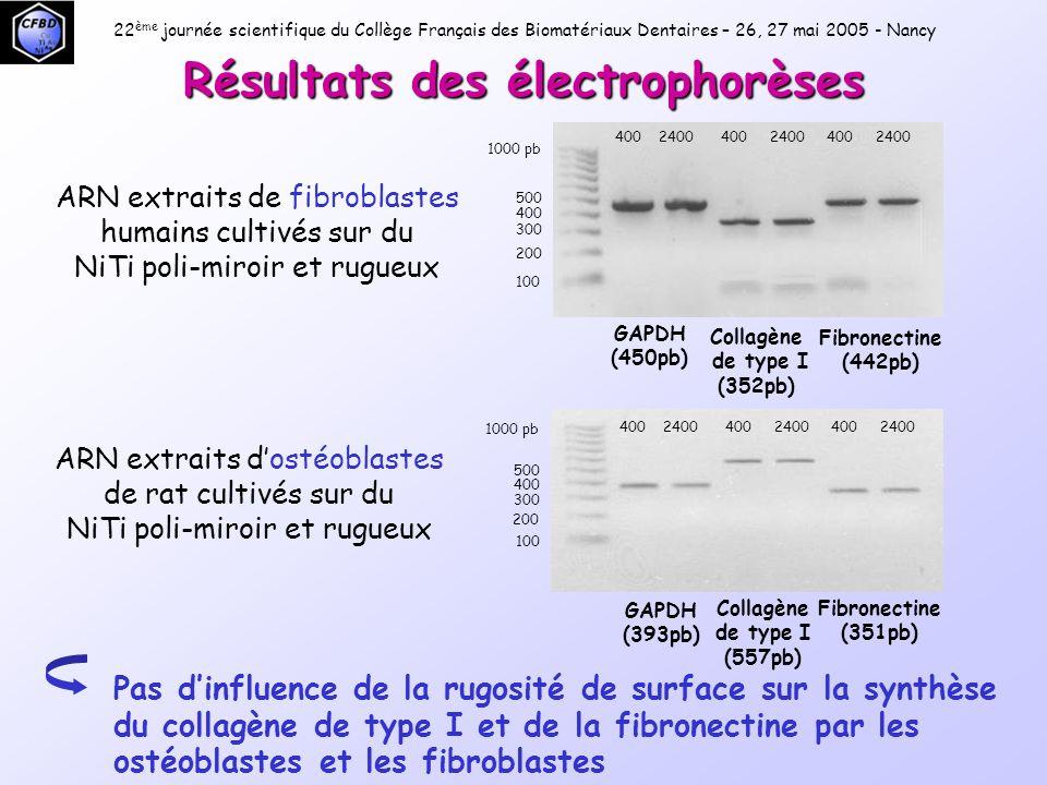 Résultats des électrophorèses