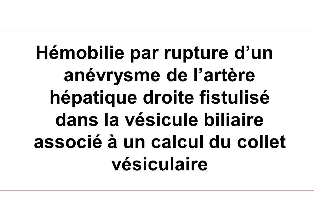 Hémobilie par rupture d'un anévrysme de l'artère hépatique droite fistulisé dans la vésicule biliaire associé à un calcul du collet vésiculaire