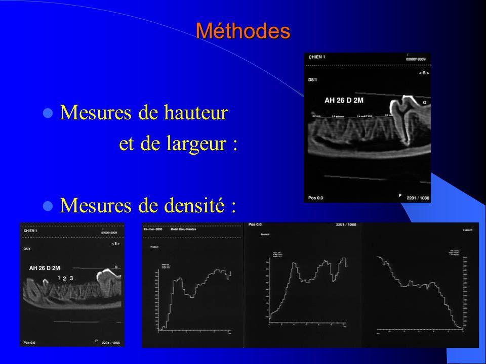 Méthodes Mesures de hauteur et de largeur : Mesures de densité :