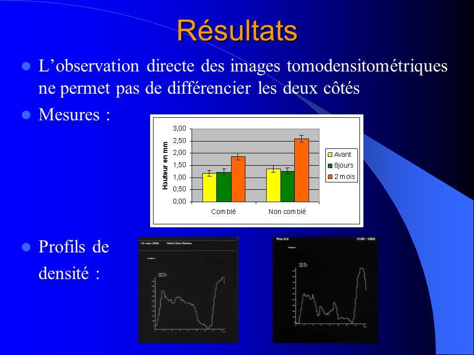 Résultats L'observation directe des images tomodensitométriques ne permet pas de différencier les deux côtés.