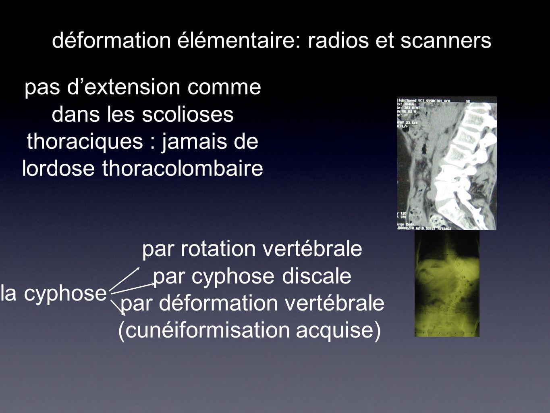 déformation élémentaire: radios et scanners