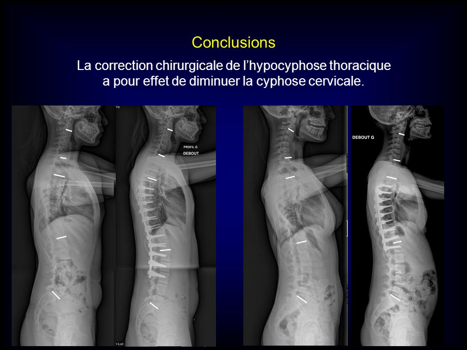 Conclusions La correction chirurgicale de l'hypocyphose thoracique