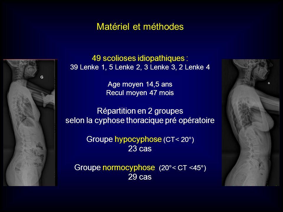 Matériel et méthodes 49 scolioses idiopathiques :