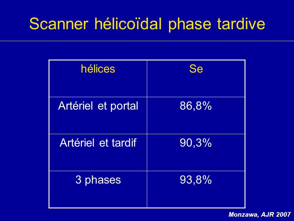 Scanner hélicoïdal phase tardive