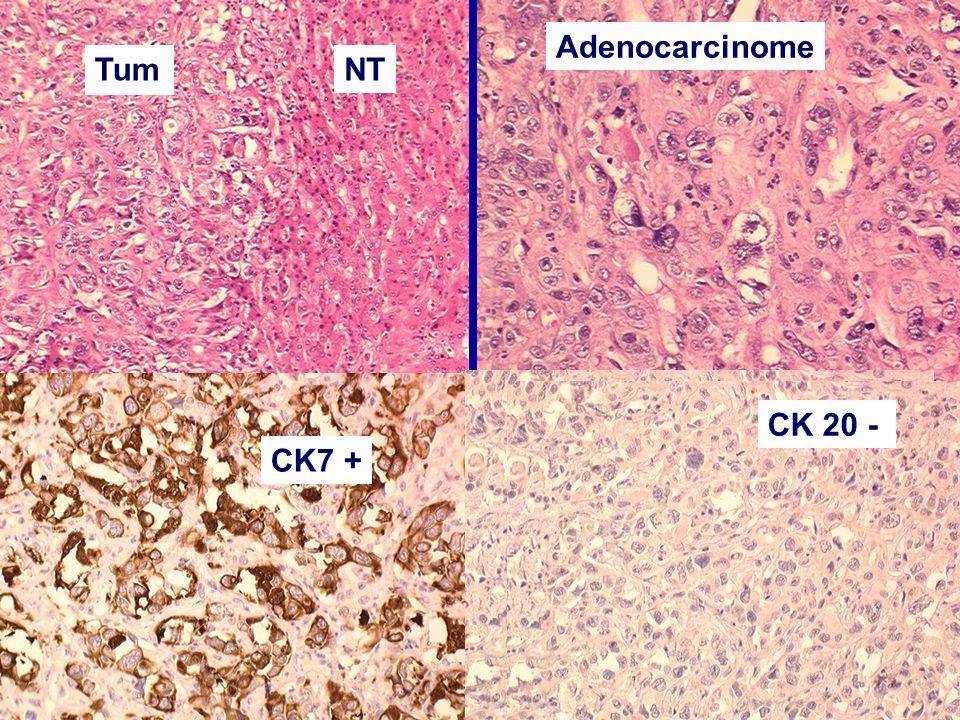 Adenocarcinome Tum NT CK 20 - CK7 + Adénocarcinome peu différencié