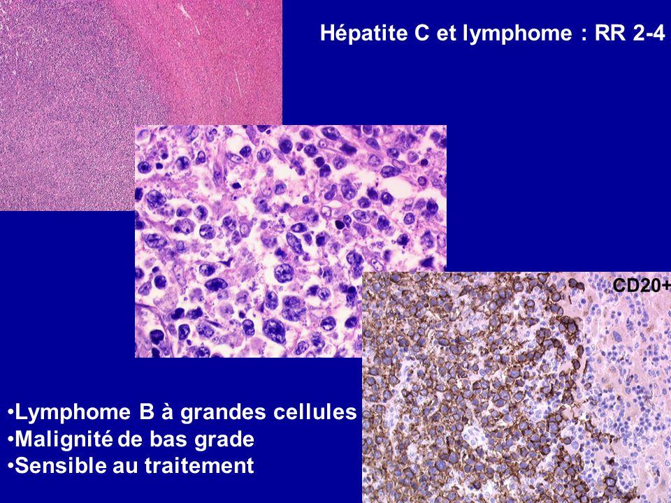 Hépatite C et lymphome : RR 2-4