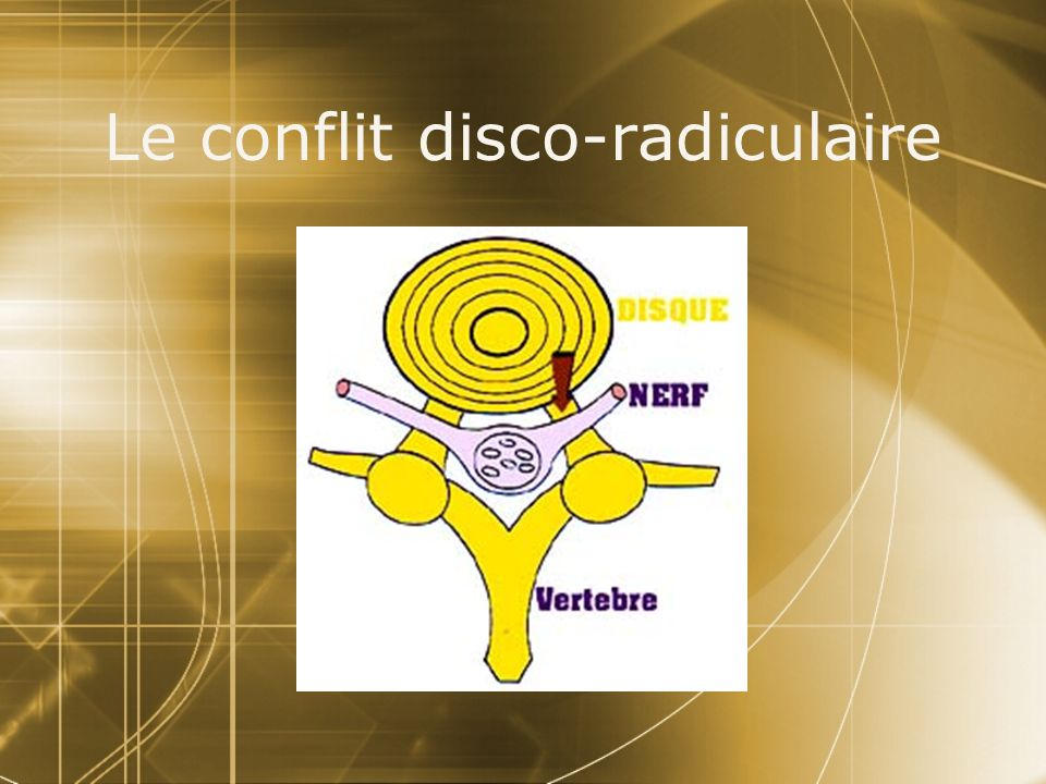 Le conflit disco-radiculaire