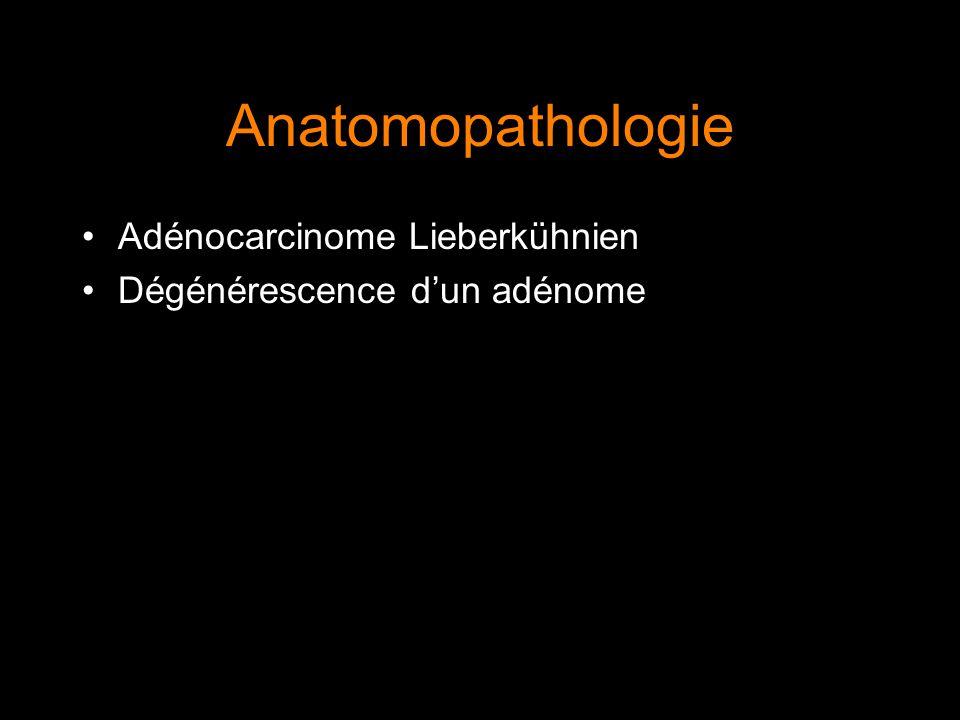 Anatomopathologie Adénocarcinome Lieberkühnien