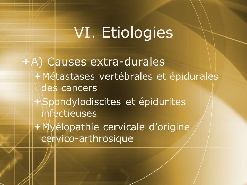 VI. Etiologies A) Causes extra-durales
