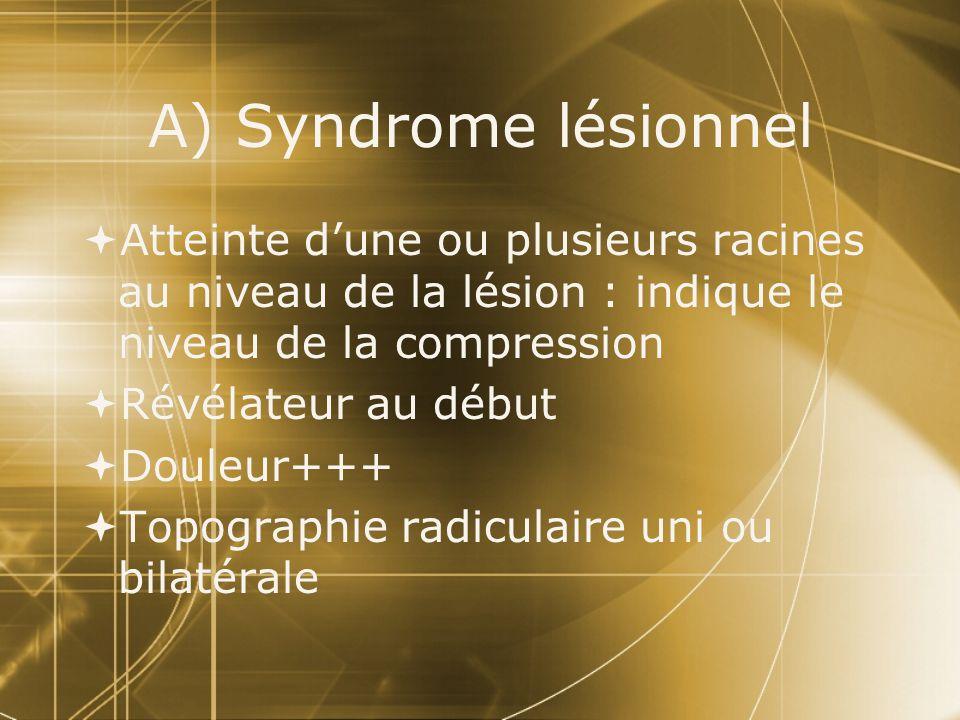 A) Syndrome lésionnel Atteinte d'une ou plusieurs racines au niveau de la lésion : indique le niveau de la compression.