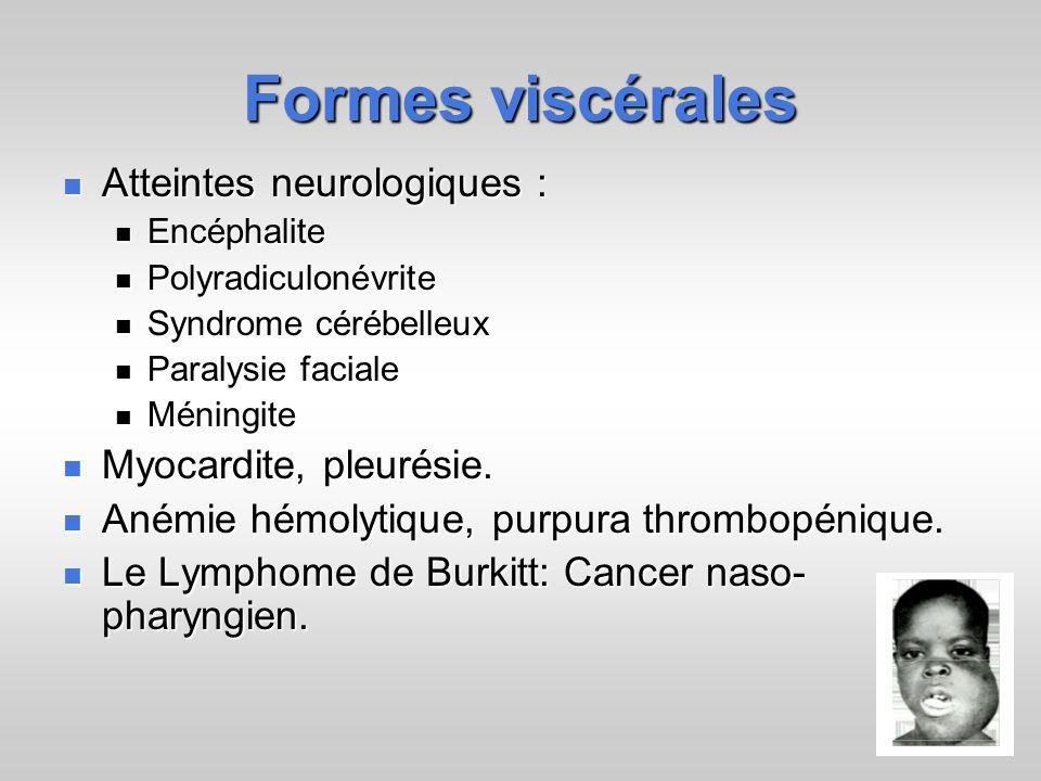 Formes viscérales Atteintes neurologiques : Myocardite, pleurésie.