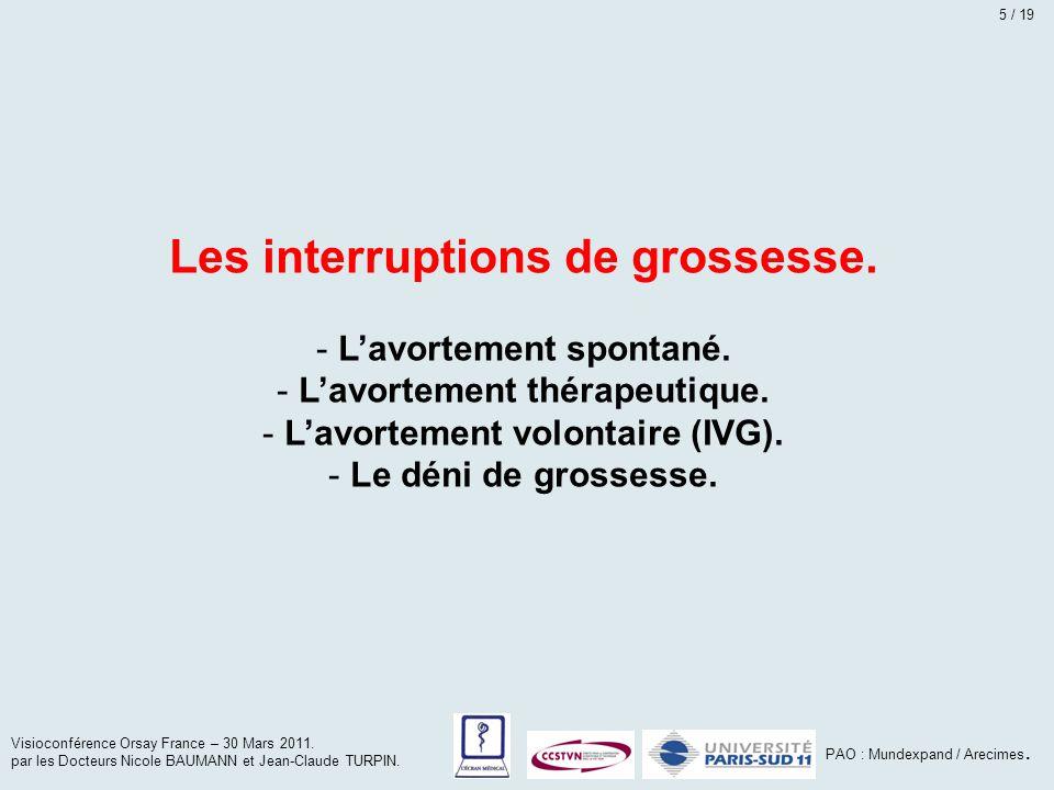 Les interruptions de grossesse.