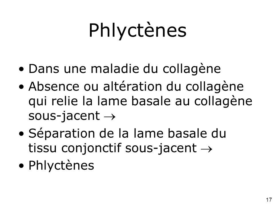 Phlyctènes Dans une maladie du collagène