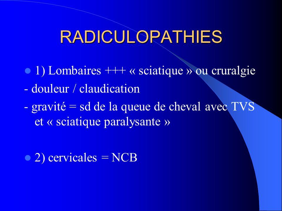 RADICULOPATHIES 1) Lombaires +++ « sciatique » ou cruralgie