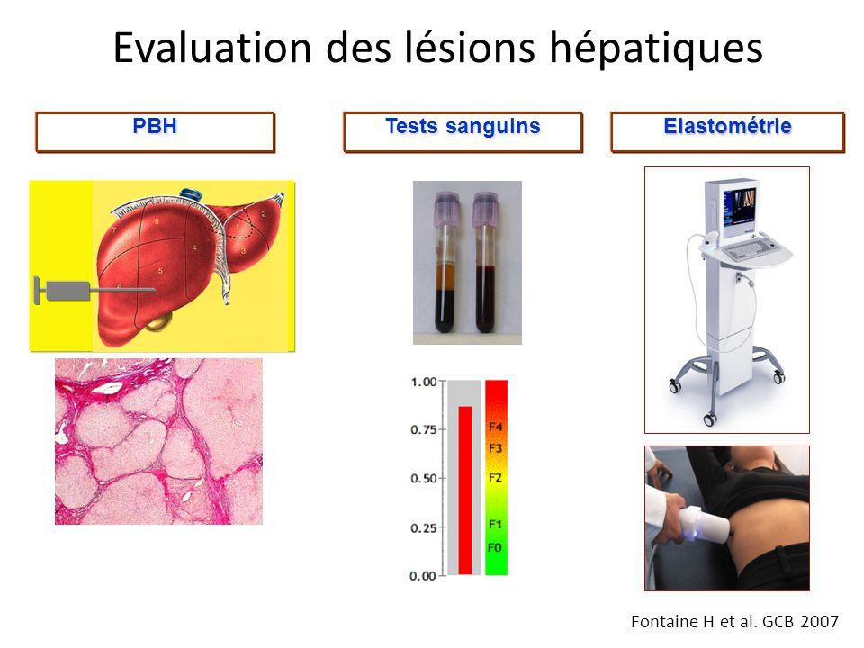 Evaluation des lésions hépatiques