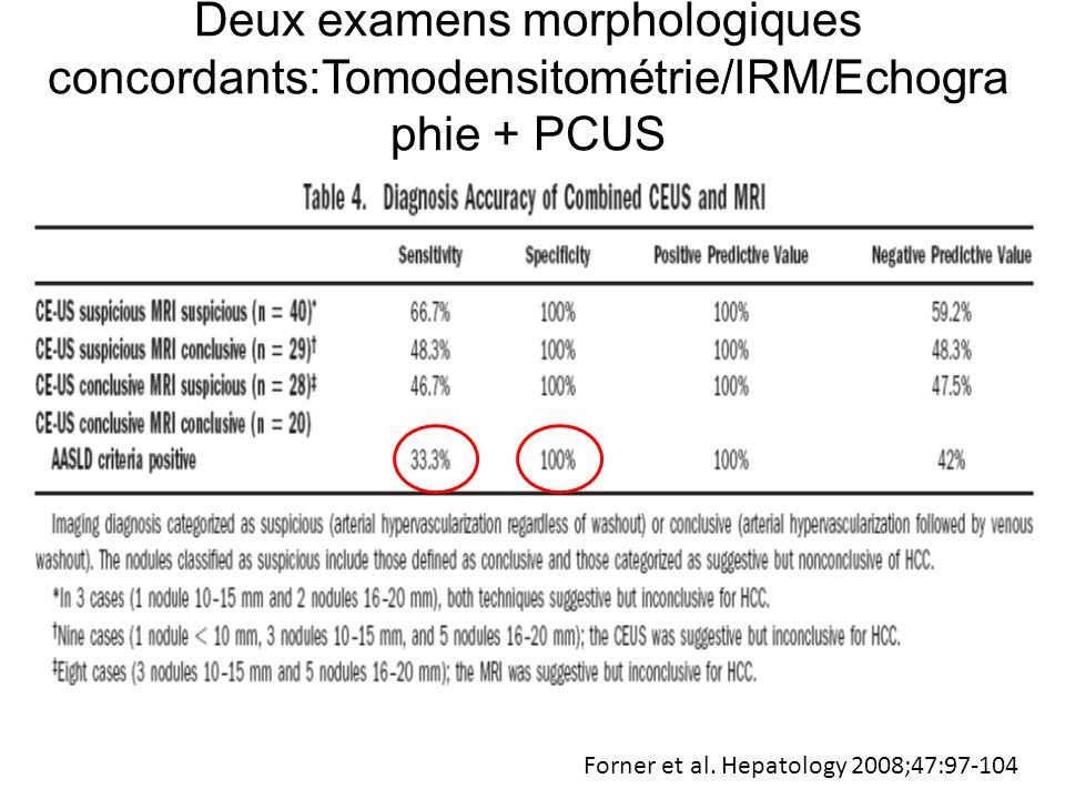 Deux examens morphologiques concordants:Tomodensitométrie/IRM/Echographie + PCUS