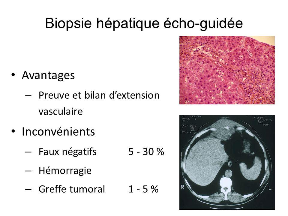 Biopsie hépatique écho-guidée