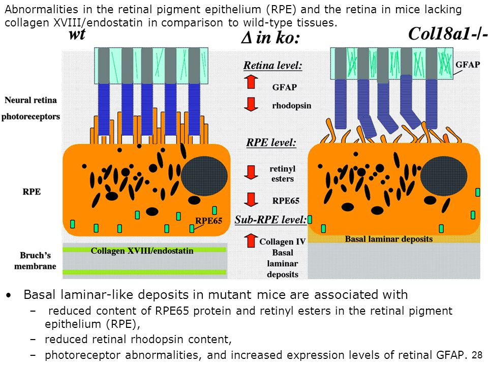 Abnormalities in the retinal pigment epithelium (RPE) and the retina in mice lacking collagen XVIII/endostatin in comparison to wild-type tissues.