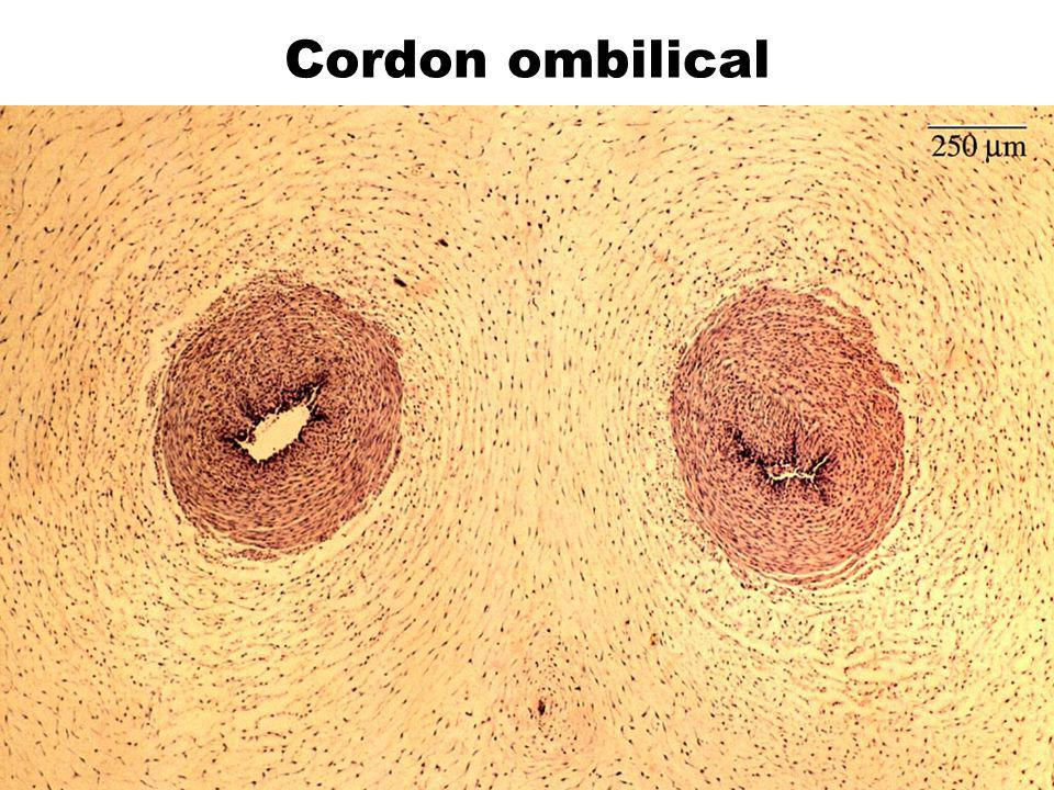 Cordon ombilical