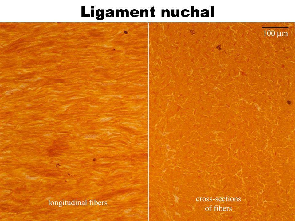 Ligament nuchal